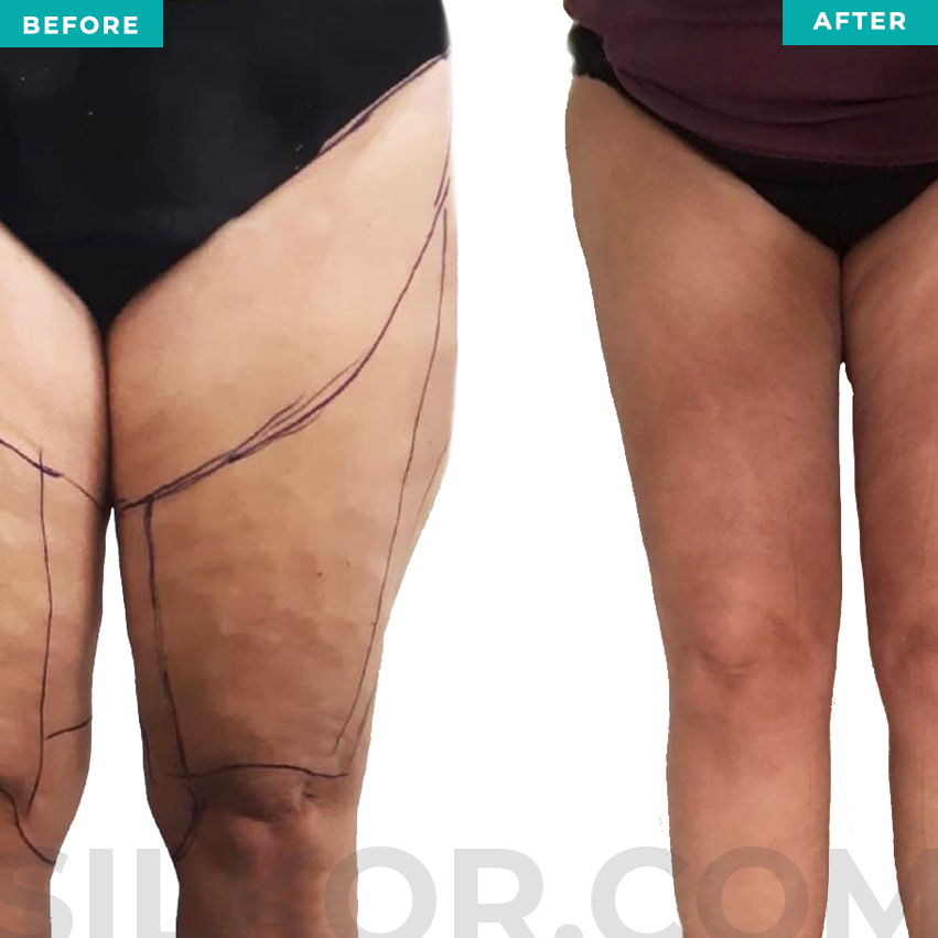 Before and After Lipedema Treatment