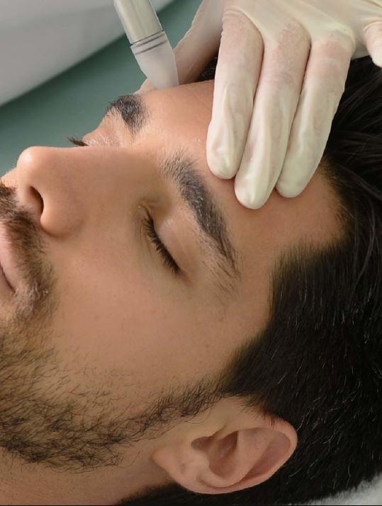 استخدام تقنية الحقن لعلاج مشاكل البشرة عند الرجال